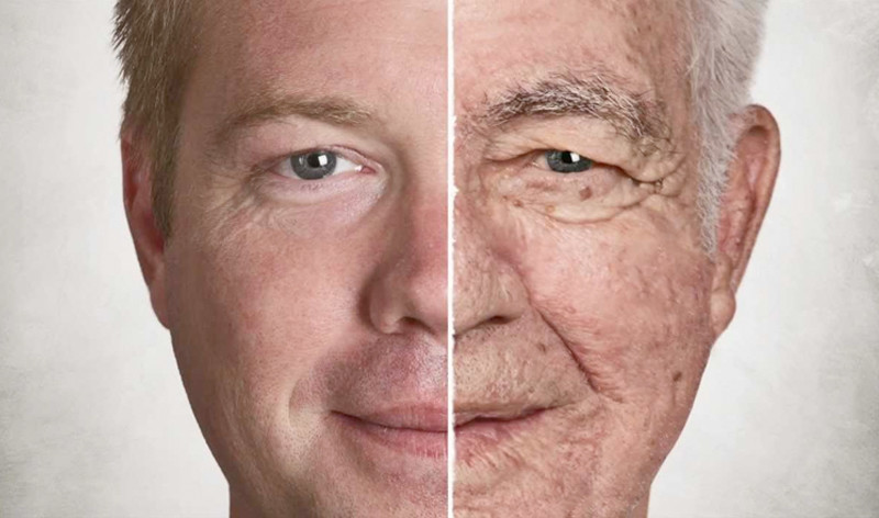 Overview of aging